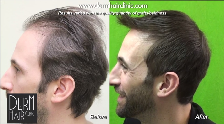 Celebrities Who Discuss Their Hair Transplant Experiences